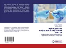 Врожденная деформация грудной клетки kitap kapağı