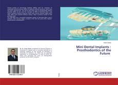 Mini Dental Implants : Prosthodontics of the Future kitap kapağı