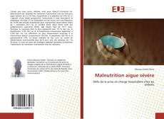 Bookcover of Malnutrition aigue sévère