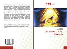 Bookcover of Les hépatites auto-immunes