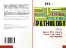 Capa do livro de Cancer de la vésicule biliaire diagnostiqué fortuitement