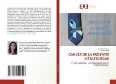 Borítókép a  CANCER DE LA PROSTATE MÉTASTATIQUE - hoz