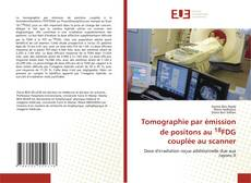 Tomographie par émission de positons au 18FDG couplée au scanner kitap kapağı