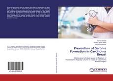 Buchcover von Prevention of Seroma Formation in Carcinoma Breast