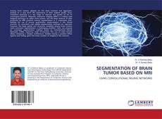Bookcover of SEGMENTATION OF BRAIN TUMOR BASED ON MRI