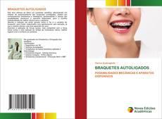 Bookcover of BRAQUETES AUTOLIGADOS