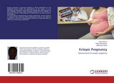 Bookcover of Ectopic Pregnancy