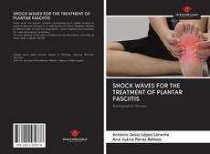 Bookcover of SHOCK WAVES FOR THE TREATMENT OF PLANTAR FASCIITIS