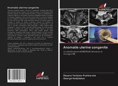 Bookcover of Anomalie uterine congenite