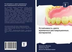 Bookcover of Устойчивость цвета временных реставрационных материалов