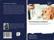 Bookcover of Коллагеновая мембрана