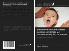 Couverture de El síndrome de anormalidades oculares asimétricas, y el retraso mental y de crecimiento