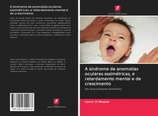 Couverture de A síndrome de anomalias oculares assimétricas, e retardamento mental e de crescimento