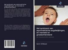 Bookcover of Het syndroom van asymmetrische oogafwijkingen, en mentale en groeiachterstand