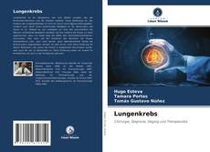 Bookcover of Lungenkrebs