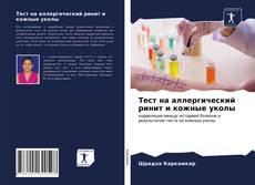 Copertina di Тест на аллергический ринит и кожные уколы