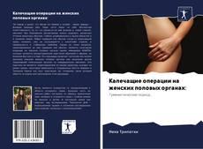 Bookcover of Калечащие операции на женских половых органах: