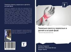 Buchcover von Тяжелые ожоги у взрослых и детей в острой фазе