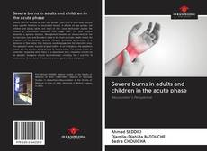 Bookcover of Severe burns in adults and children in the acute phase