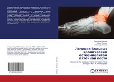 Bookcover of Лечение больных хроническим остеомиелитом пяточной кости