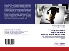 Bookcover of Определение деформации вертлужной впадины