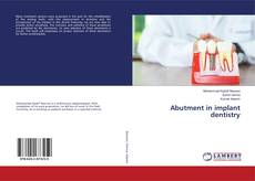 Bookcover of Abutment in implant dentistry