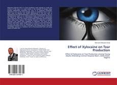Portada del libro de Effect of Xylocaine on Tear Production