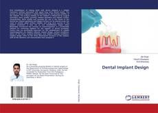 Capa do livro de Dental Implant Design