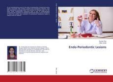 Bookcover of Endo-Periodontic Lesions
