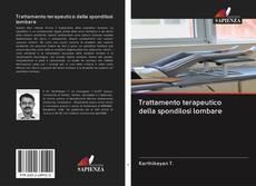Bookcover of Trattamento terapeutico della spondilosi lombare