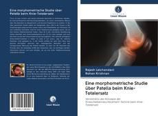 Bookcover of Eine morphometrische Studie über Patella beim Knie-Totalersatz