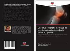 Bookcover of Une étude morphométrique de la rotule dans l'arthroplastie totale du genou