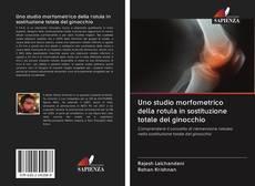 Copertina di Uno studio morfometrico della rotula in sostituzione totale del ginocchio