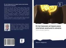 Portada del libro de Естественная история рака эпителия анального канала