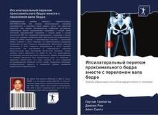 Portada del libro de Ипсилатеральный перелом проксимального бедра вместе с переломом вала бедра
