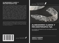 Copertina di ALINEADORES CLAROS Y MECANOTERAPIA FIJA