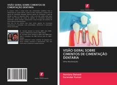 Copertina di VISÃO GERAL SOBRE CIMENTOS DE CIMENTAÇÃO DENTÁRIA