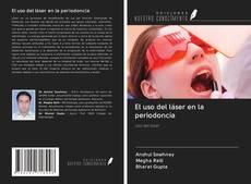 Bookcover of El uso del láser en la periodoncia