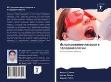 Buchcover von Использование лазеров в пародонтологии