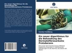 Ein neuer Algorithmus für die Behandlung des Dermatofibrosarkoms Protuberans的封面