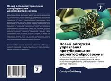 Portada del libro de Новый алгоритм управления протуберанцами дерматофибросаркомы