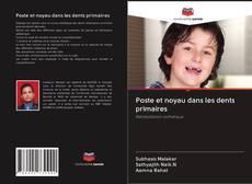 Bookcover of Poste et noyau dans les dents primaires