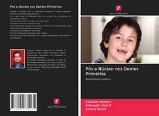 Buchcover von Pós e Núcleo nos Dentes Primários