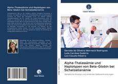 Couverture de Alpha-Thalassämie und Haplotypen von Beta-Globin bei Sichelzellanämie