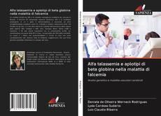 Обложка Alfa talassemia e aplotipi di beta globina nella malattia di falcemia