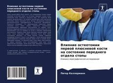 Bookcover of Влияние остеотомии первой плюсневой кости на состояние переднего отдела стопы