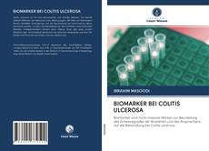Portada del libro de BIOMARKER BEI COLITIS ULCEROSA