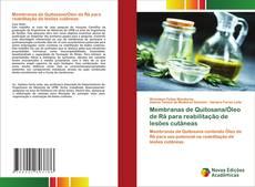Membranas de Quitosana/Óleo de Rã para reabilitação de lesões cutâneas的封面