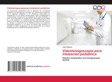 Bookcover of Videolaringoscopía para intubación pediátrica