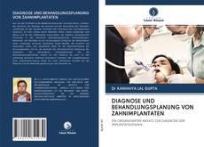 Bookcover of DIAGNOSE UND BEHANDLUNGSPLANUNG VON ZAHNIMPLANTATEN